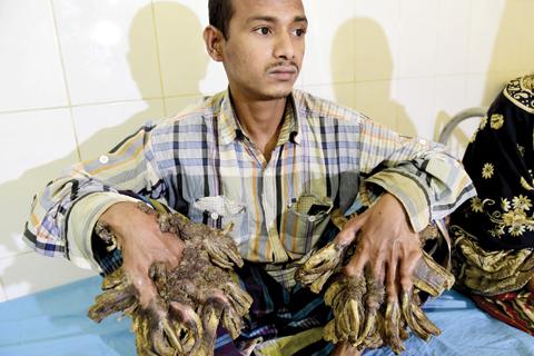 "DHAKA: Bangladesh patient Abul Bajandar, 26, dubbed ""Tree Man"" for massive bark-like warts on his hands and feet, sits at Dhaka Medical College Hospital in Dhaka. — AFP"